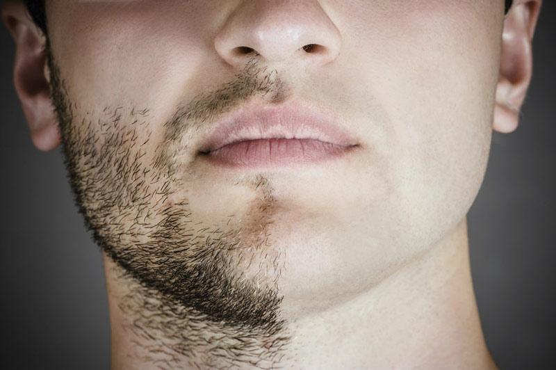 barbe inconvénient